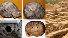 Evidences of brain surgery being done during Bronze Age have been found in Harappa.